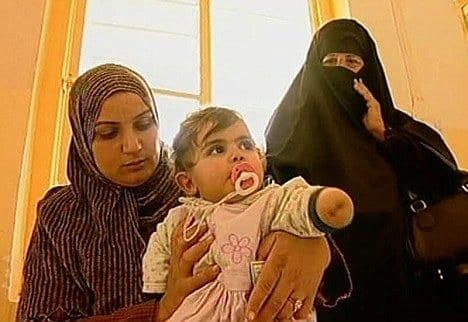 Birth defects: A Fallujah mother holds her little girl, who was born without a left forearm and hand