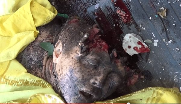 A child victim of Kiev's army terror bombing. He'd probably be alive if it weren't for Washington's criminal meddling in Ukraine.