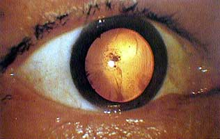 Cataract caused by the explosion.