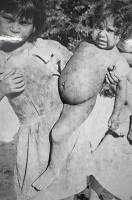 Infant hunger, malnutrition and mortality were rampant in the old colonialized Cuba.